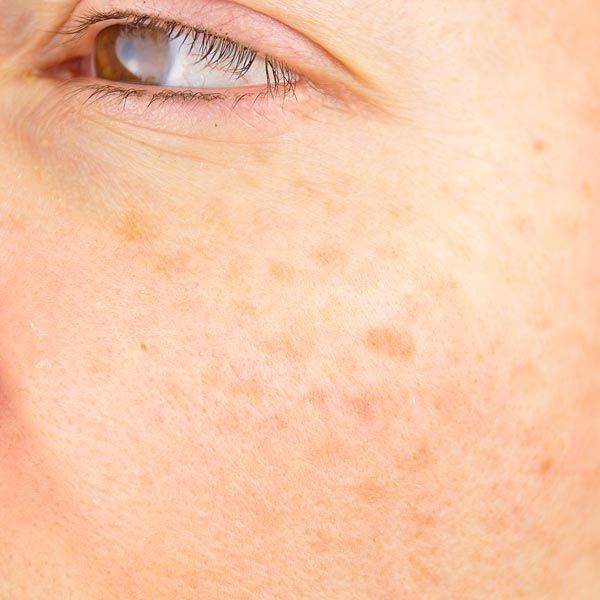 close-up photo of patient's uneven skin complexion