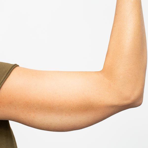 Sagging upper arm
