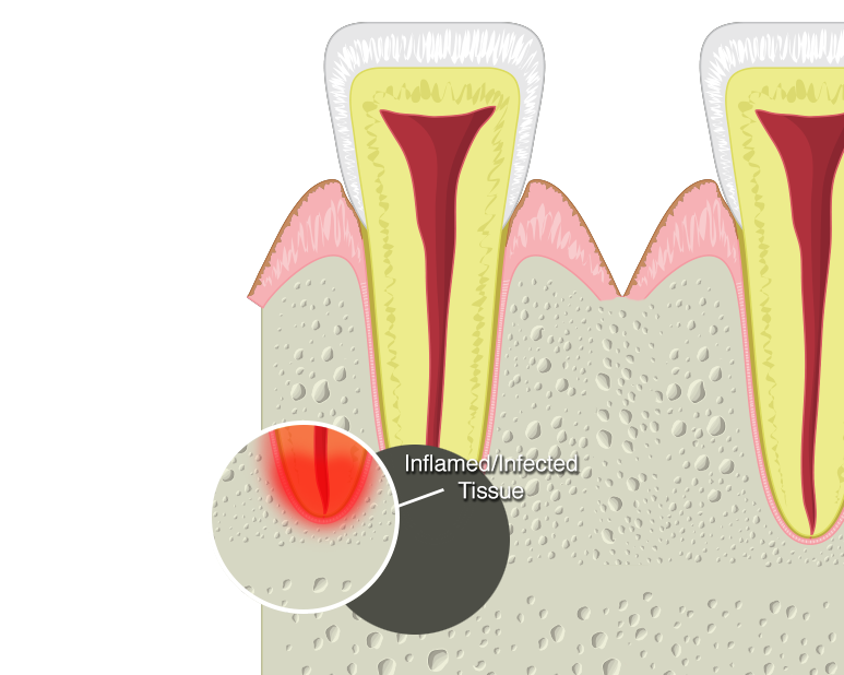illustration of infected tooth root