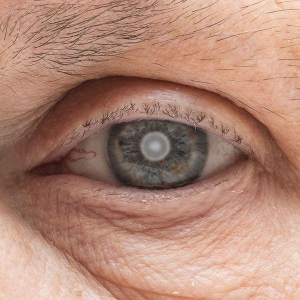 eye clouded over by a cataract