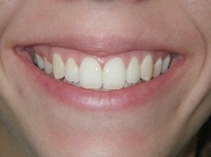 before occlusal adjustment