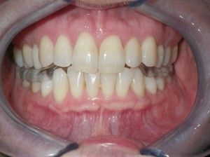 close up of a smile with an orthotic device
