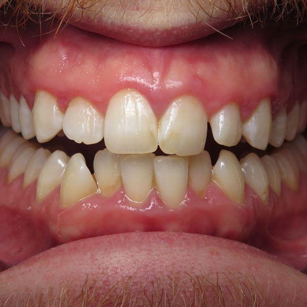 Invisalign® - Victoria, TX - Zboril Dental Center - Clear ...