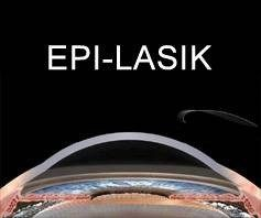 illustration of flapless Epi-LASIK procedure