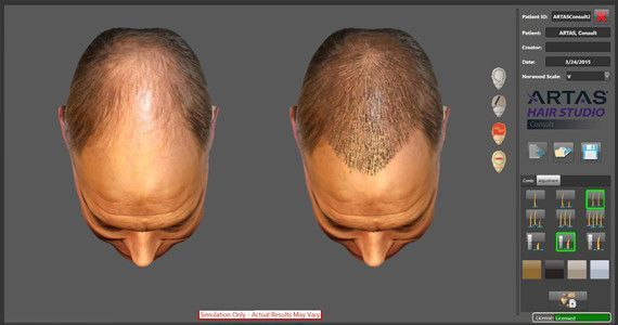 Before and after digital image in ARTAS hair transplant software