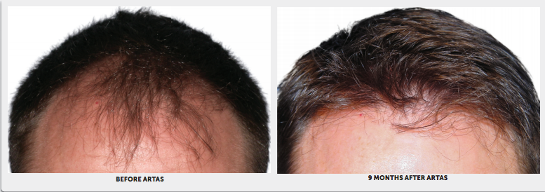 Patient 1's head before and after treatment