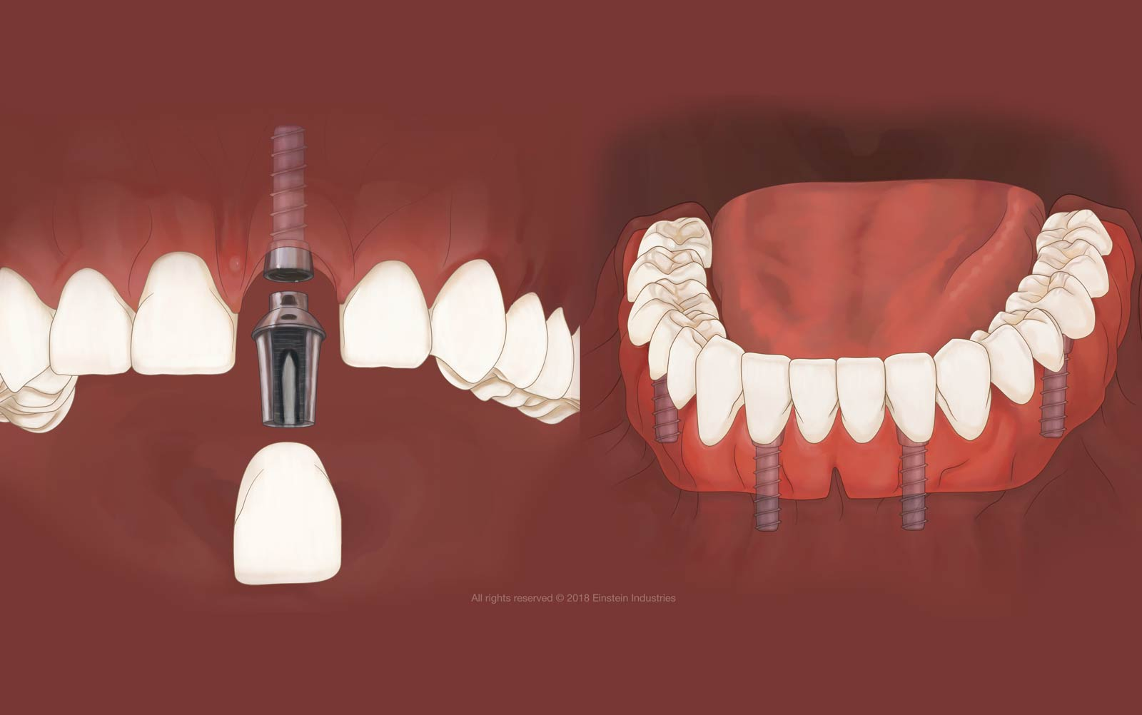 Illustration of implant-supported crown and denture