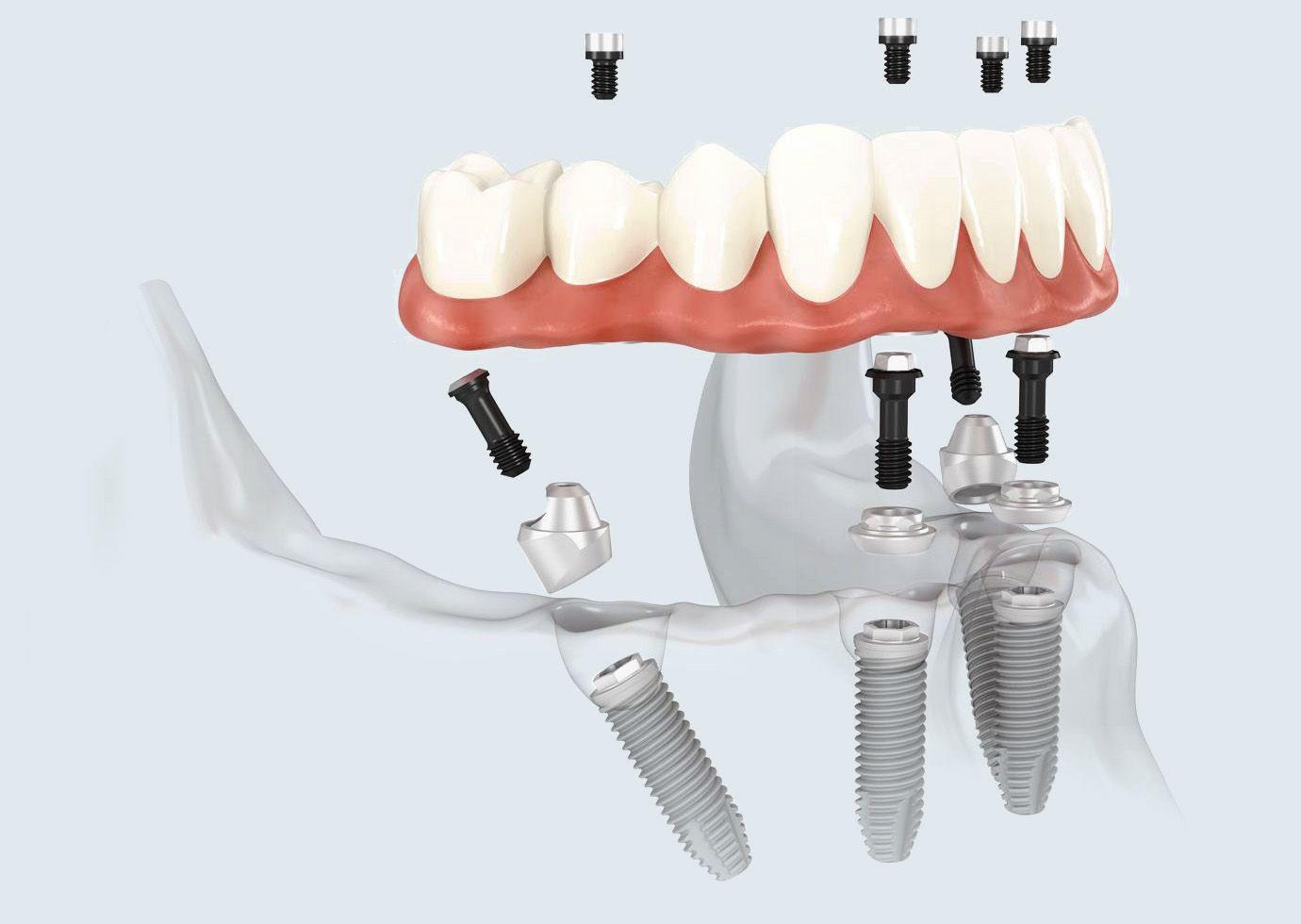 Illustration of All-on-4 denture