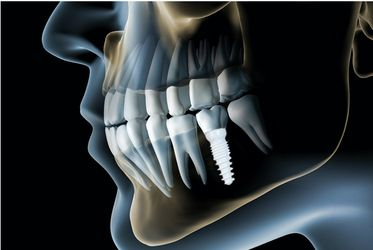 A dental implant in the jawbone