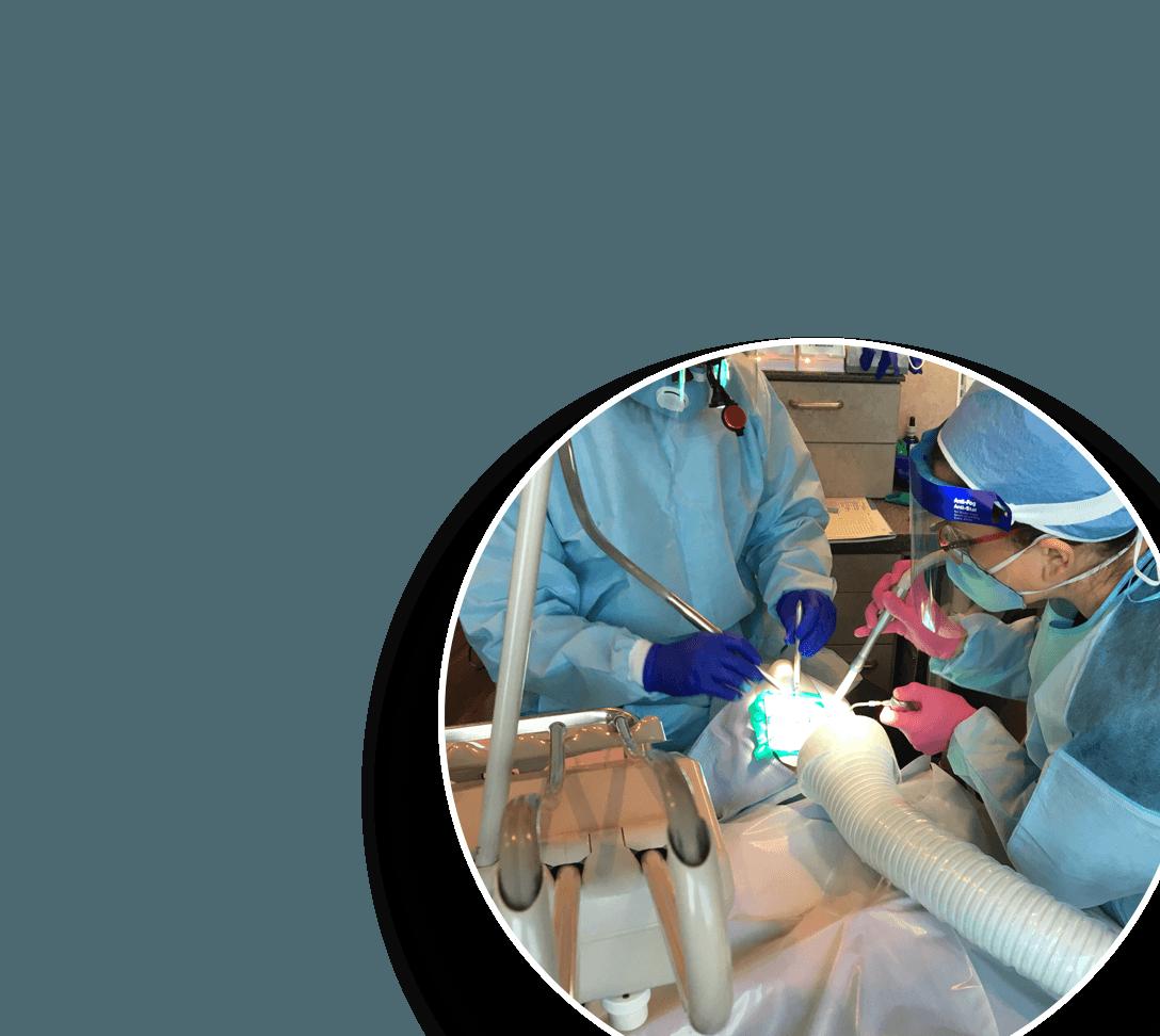 Dental team removing amalgam filling