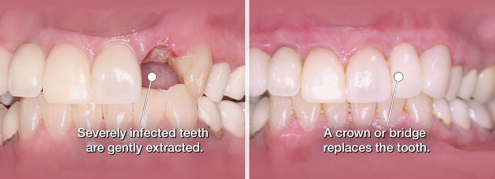 Before and after tooth extraction