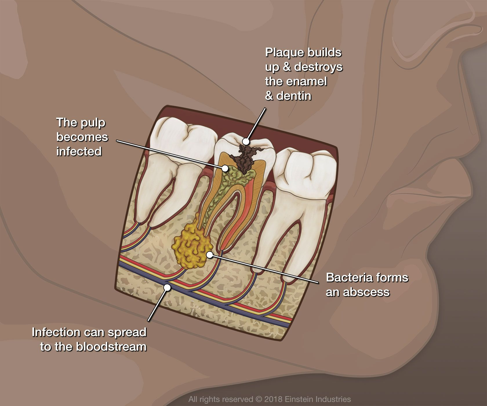 Illustration showing effects of tooth infection