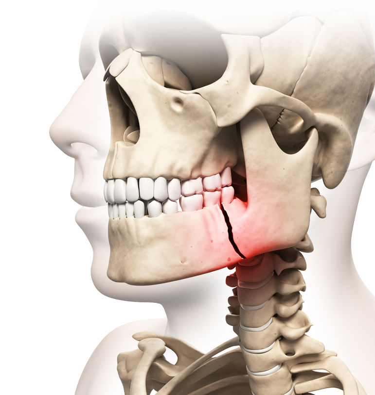 Illustration of skull with broken jaw highlighted in red