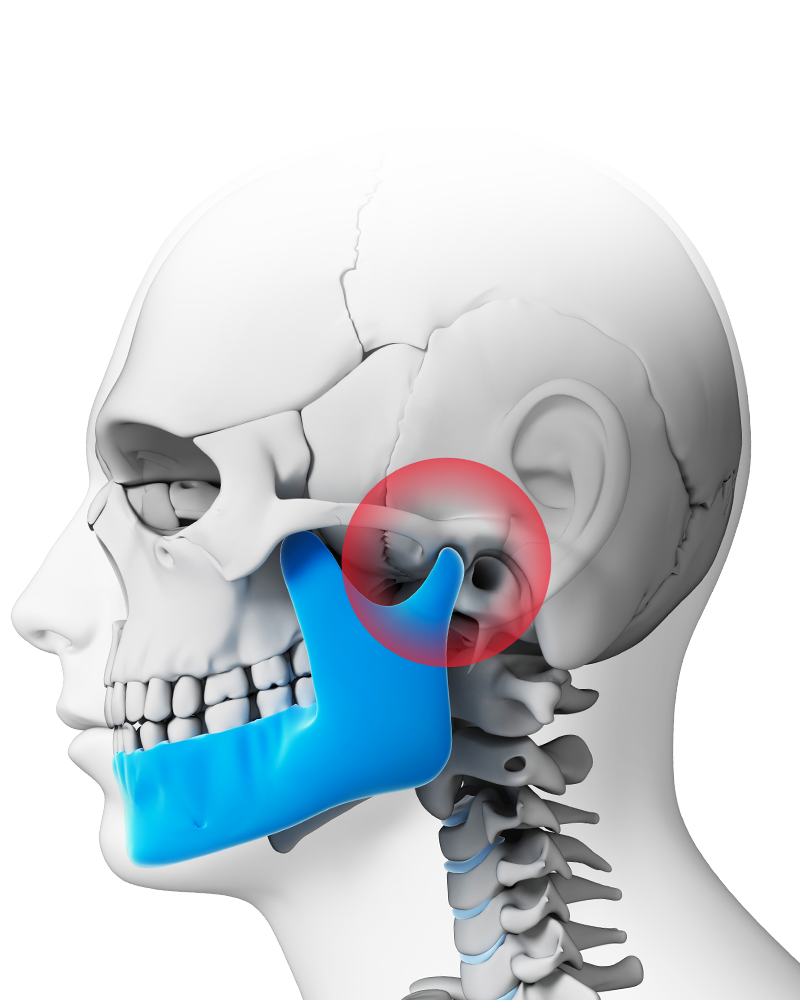 Illustration of skull and jaw with TMJ in red