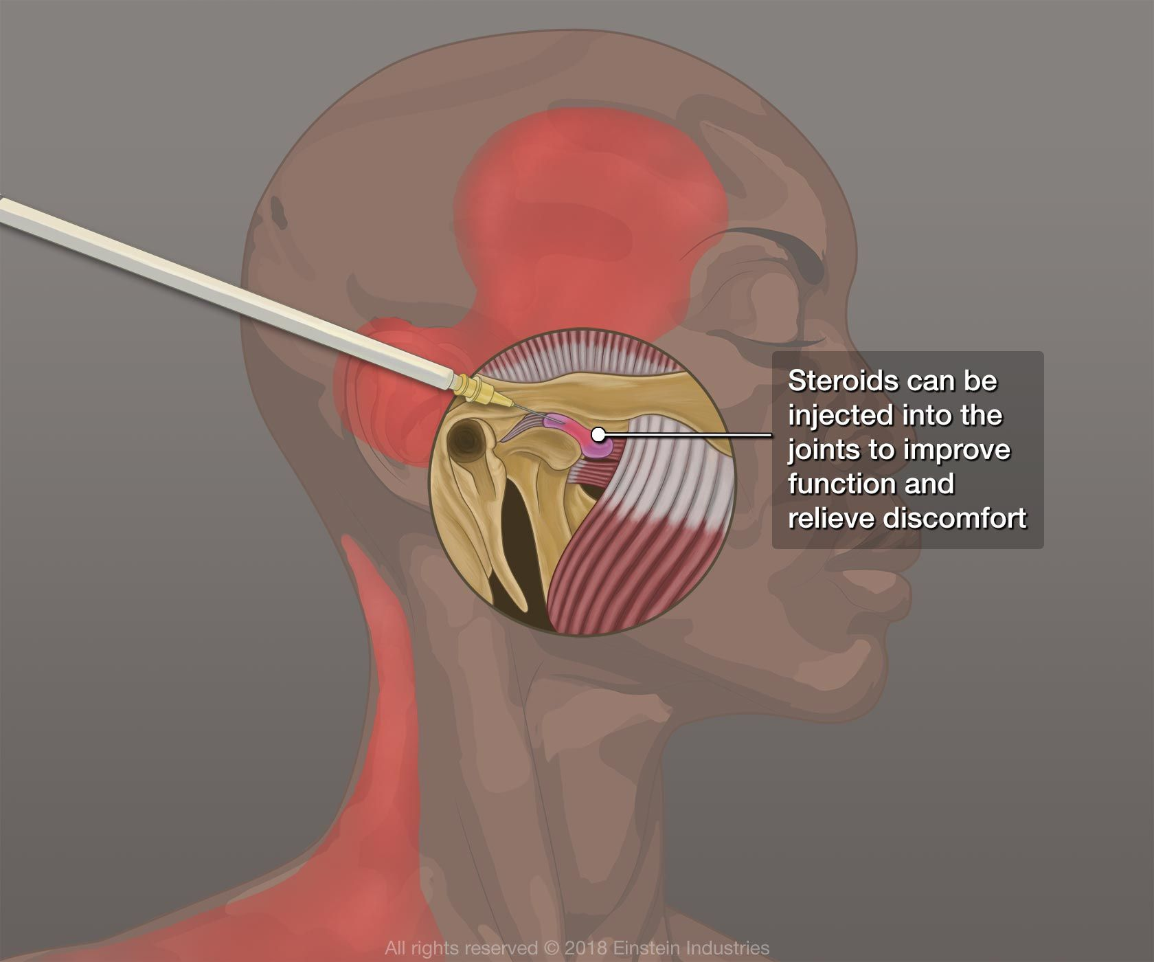 Illustration of steroid injections for TMJ disorder