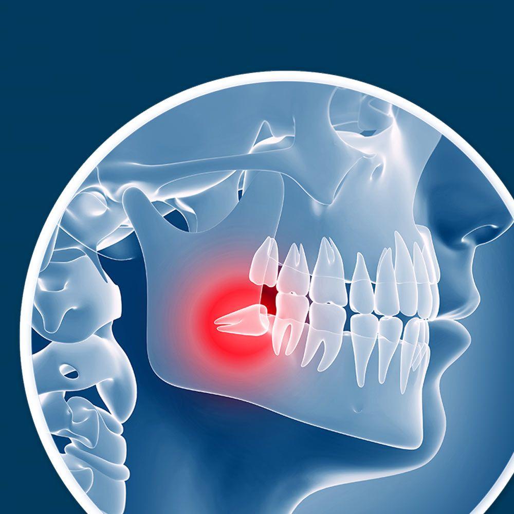 Wisdom Teeth Removal Logan Ut Garland Ut Gregory E Anderson Pc