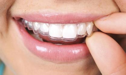 a close up of a smile with Invisalign