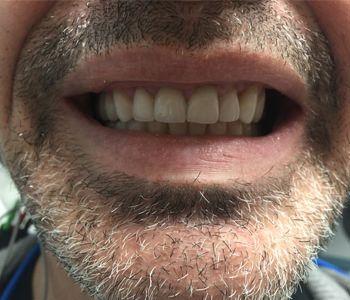 reconstructive holistic dentisty