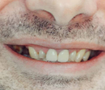 before cosmetic dental implant