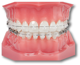artificial teeth with braces